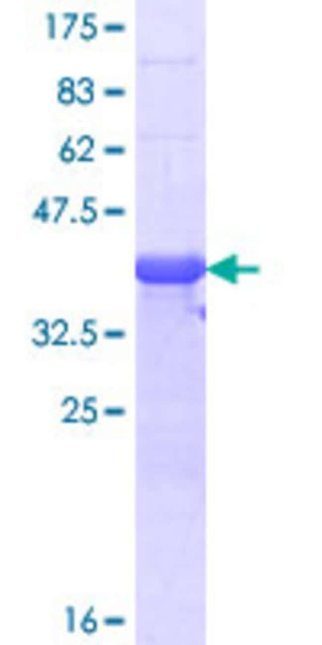 Abnova Human RLF Partial ORF (NP_036553.1, 1805 a.a. - 1913 a.a.) Recombinant