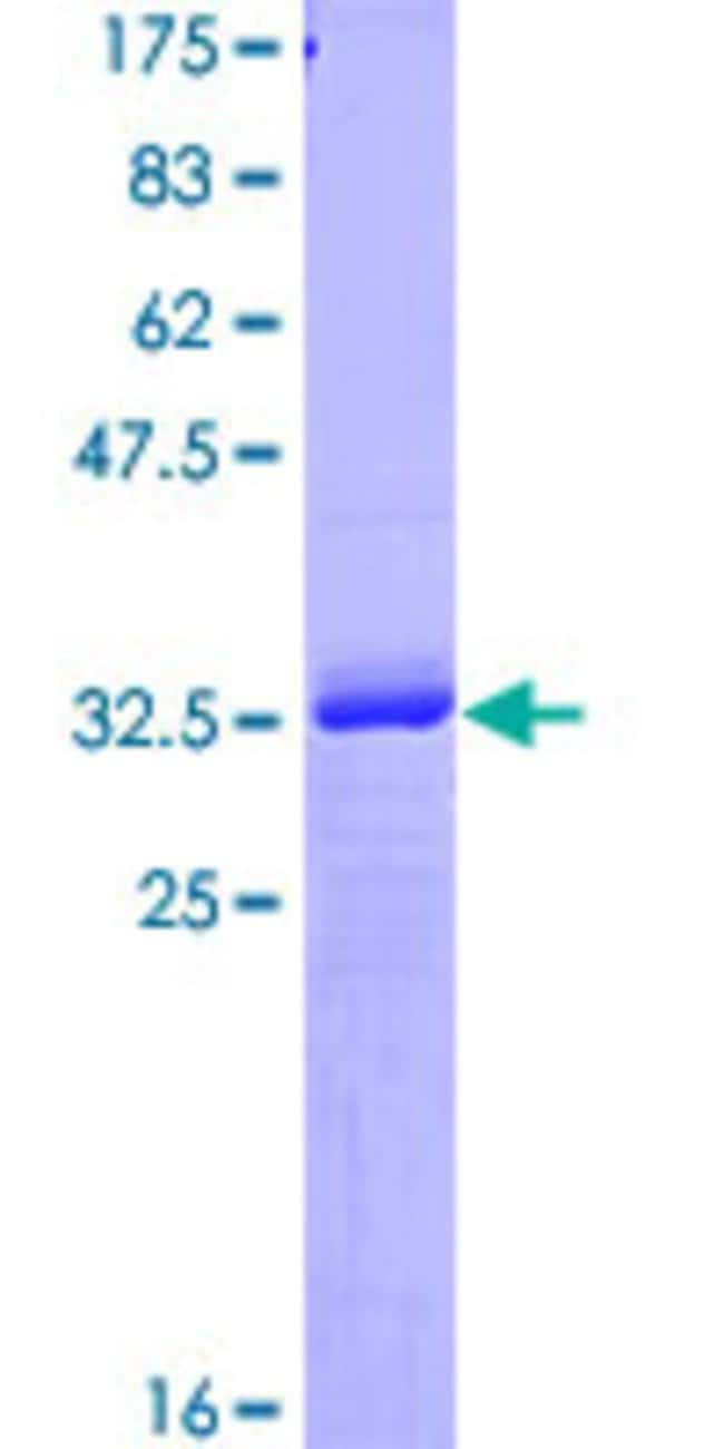 Abnova™Human RNF4 Partial ORF (NP_002929, 107 a.a. - 190 a.a.) Recombinant Protein with GST-tag at N-terminal 10μg Abnova™Human RNF4 Partial ORF (NP_002929, 107 a.a. - 190 a.a.) Recombinant Protein with GST-tag at N-terminal
