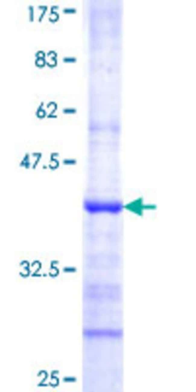 Abnova™Human ABCE1 Partial ORF (NP_002931, 500 a.a. - 597 a.a.) Recombinant Protein with GST-tag at N-terminal 10μg Abnova™Human ABCE1 Partial ORF (NP_002931, 500 a.a. - 597 a.a.) Recombinant Protein with GST-tag at N-terminal