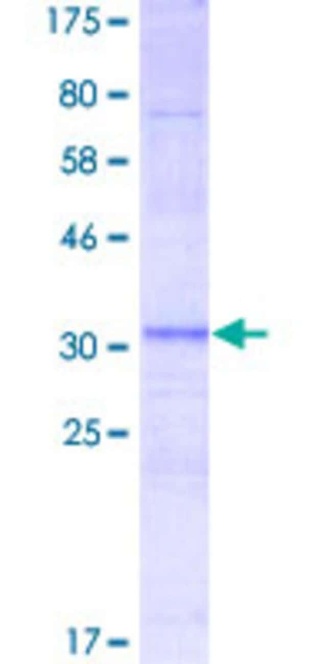 Abnova™Human RPL3L Partial ORF (NP_005052, 280 a.a. - 360 a.a.) Recombinant Protein with GST-tag at N-terminal 10μg Abnova™Human RPL3L Partial ORF (NP_005052, 280 a.a. - 360 a.a.) Recombinant Protein with GST-tag at N-terminal