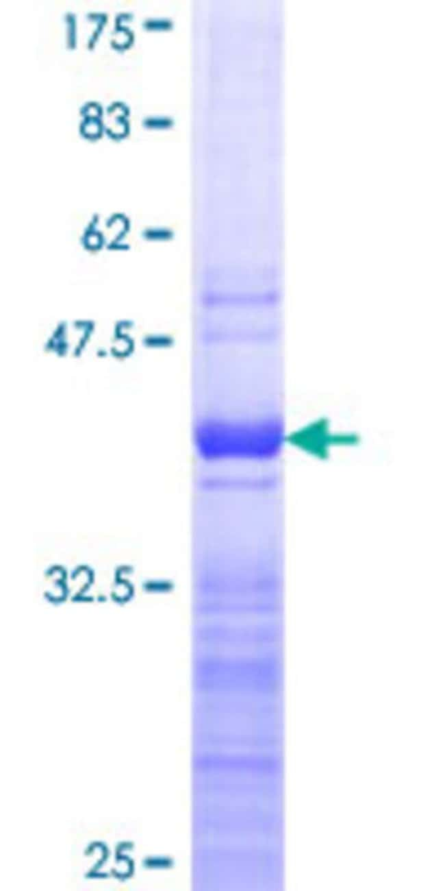Abnova™Human RPL8 Partial ORF (NP_000964, 148 a.a. - 257 a.a.) Recombinant Protein with GST-tag at N-terminal 10μg Abnova™Human RPL8 Partial ORF (NP_000964, 148 a.a. - 257 a.a.) Recombinant Protein with GST-tag at N-terminal