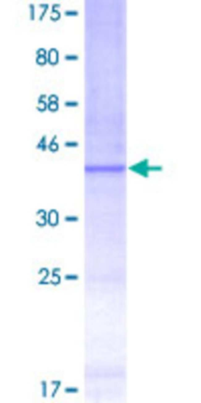 Abnova™Human RPL11 Partial ORF (NP_000966, 2 a.a. - 100 a.a.) Recombinant Protein with GST-tag at N-terminal 25μg Abnova™Human RPL11 Partial ORF (NP_000966, 2 a.a. - 100 a.a.) Recombinant Protein with GST-tag at N-terminal