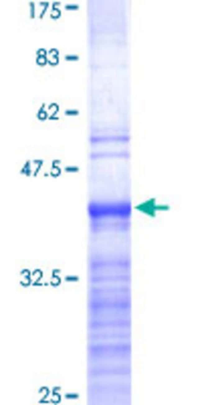 Abnova™Human RPL19 Partial ORF (NP_000972, 1 a.a. - 100 a.a.) Recombinant Protein with GST-tag at N-terminal 10μg Abnova™Human RPL19 Partial ORF (NP_000972, 1 a.a. - 100 a.a.) Recombinant Protein with GST-tag at N-terminal