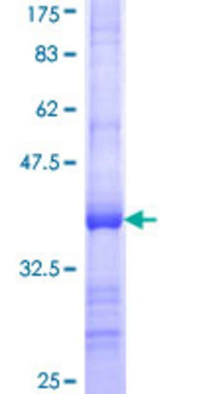 Abnova™ Human RPL21 Partial ORF (NP_000973, 2 a.a. - 85 a.a.) Recombinant Protein with GST-tag at N-terminal 25μg Abnova™ Human RPL21 Partial ORF (NP_000973, 2 a.a. - 85 a.a.) Recombinant Protein with GST-tag at N-terminal