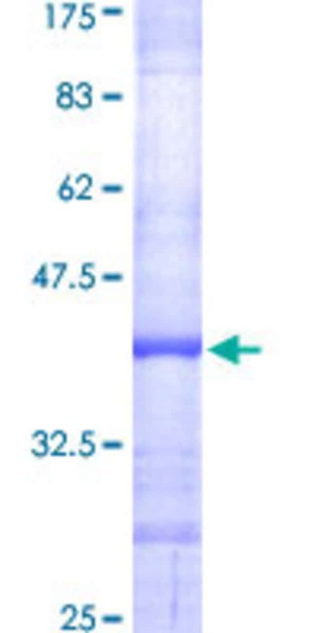 Abnova™Human RPL35A Partial ORF (NP_000987, 11 a.a. - 110 a.a.) Recombinant Protein with GST-tag at N-terminal 10μg Abnova™Human RPL35A Partial ORF (NP_000987, 11 a.a. - 110 a.a.) Recombinant Protein with GST-tag at N-terminal