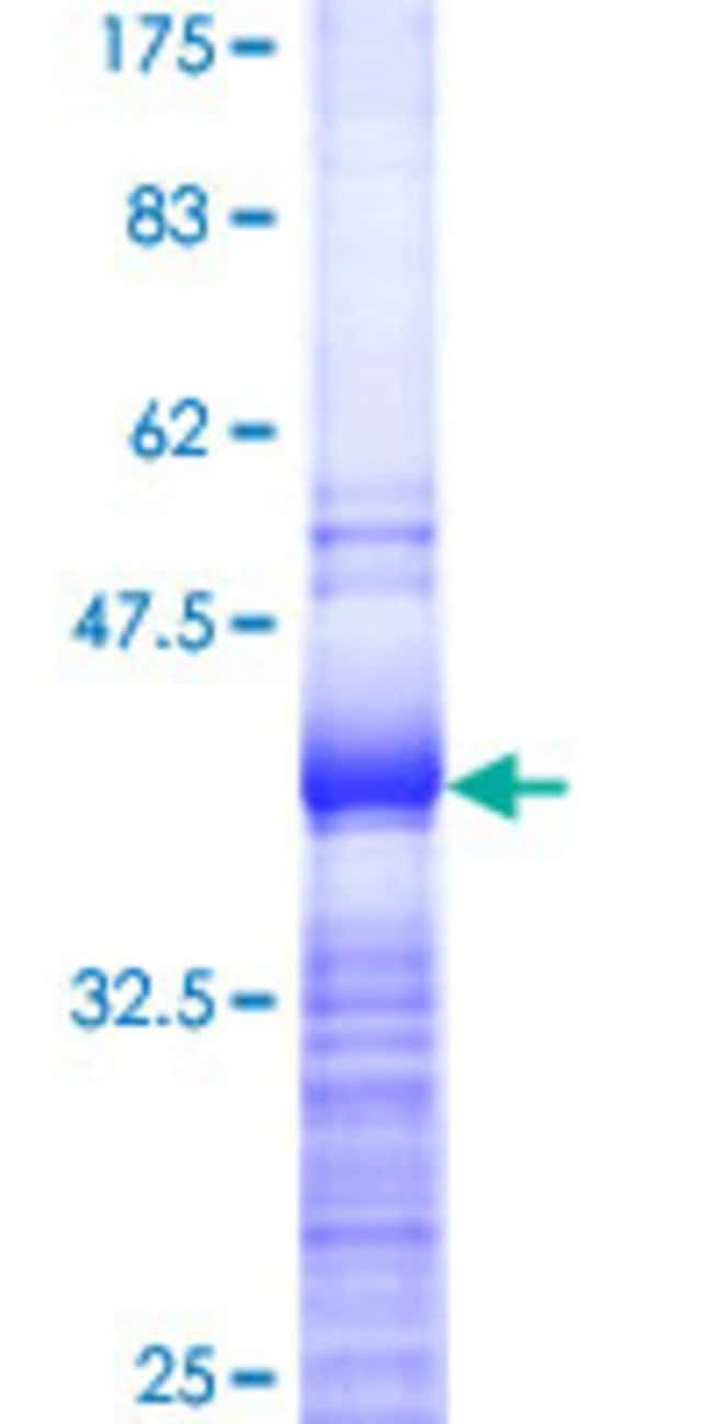 Abnova™Human RPL37 Partial ORF (NP_000988, 1 a.a. - 97 a.a.) Recombinant Protein with GST-tag at N-terminal 10μg Abnova™Human RPL37 Partial ORF (NP_000988, 1 a.a. - 97 a.a.) Recombinant Protein with GST-tag at N-terminal
