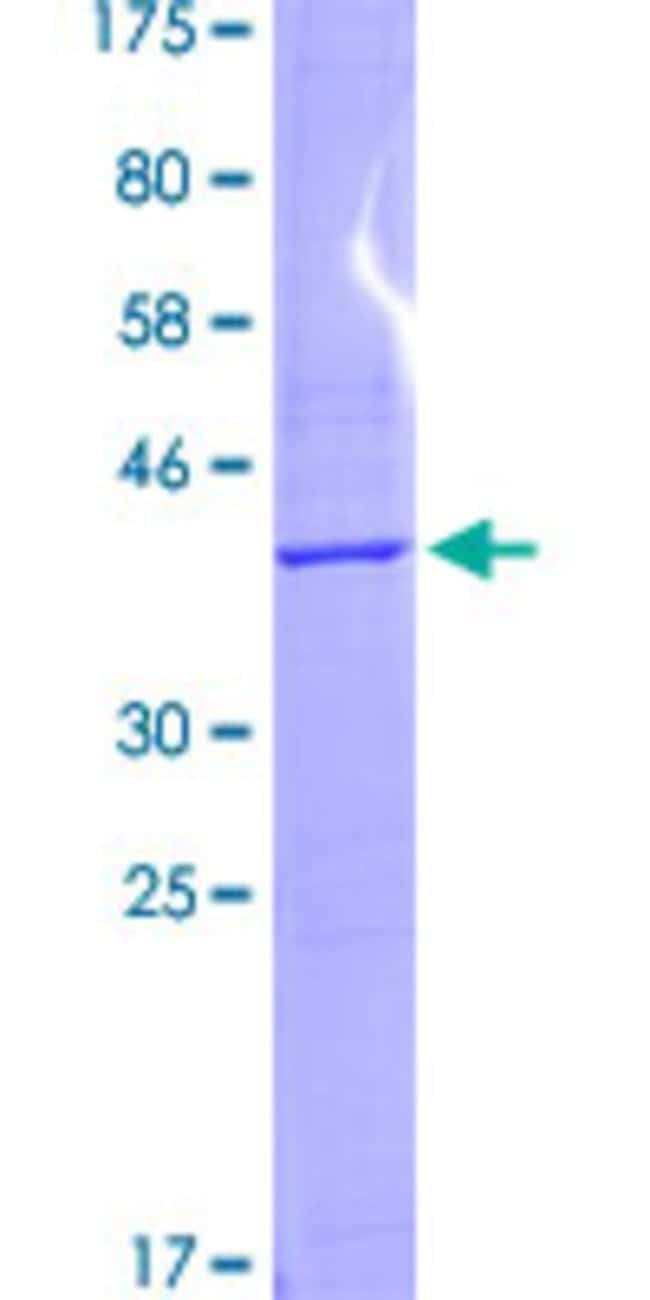 Abnova™Human RPS2 Partial ORF (NP_002943.2, 47 a.a. - 170 a.a.) Recombinant Protein with GST-tag at N-terminal 25μg Abnova™Human RPS2 Partial ORF (NP_002943.2, 47 a.a. - 170 a.a.) Recombinant Protein with GST-tag at N-terminal