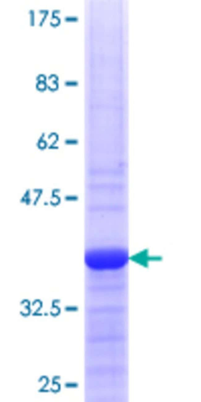 Abnova™Human RPS8 Partial ORF (NP_001003.1, 109 a.a. - 207 a.a.) Recombinant Protein with GST-tag at N-terminal 25μg Abnova™Human RPS8 Partial ORF (NP_001003.1, 109 a.a. - 207 a.a.) Recombinant Protein with GST-tag at N-terminal