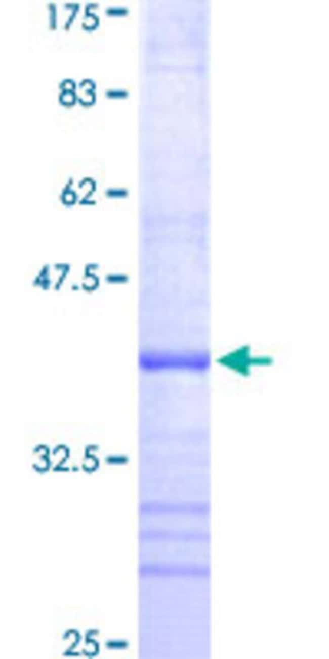 Abnova™Human RPS10 Partial ORF (NP_001005, 66 a.a. - 165 a.a.) Recombinant Protein with GST-tag at N-terminal 10μg Abnova™Human RPS10 Partial ORF (NP_001005, 66 a.a. - 165 a.a.) Recombinant Protein with GST-tag at N-terminal