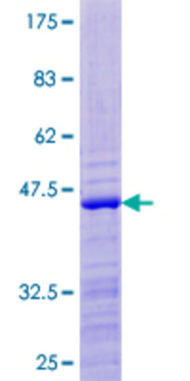 Abnova™Human RPS24 Full-length ORF (NP_148982.1, 1 a.a. - 130 a.a.) Recombinant Protein with GST-tag at N-terminal 10μg Abnova™Human RPS24 Full-length ORF (NP_148982.1, 1 a.a. - 130 a.a.) Recombinant Protein with GST-tag at N-terminal