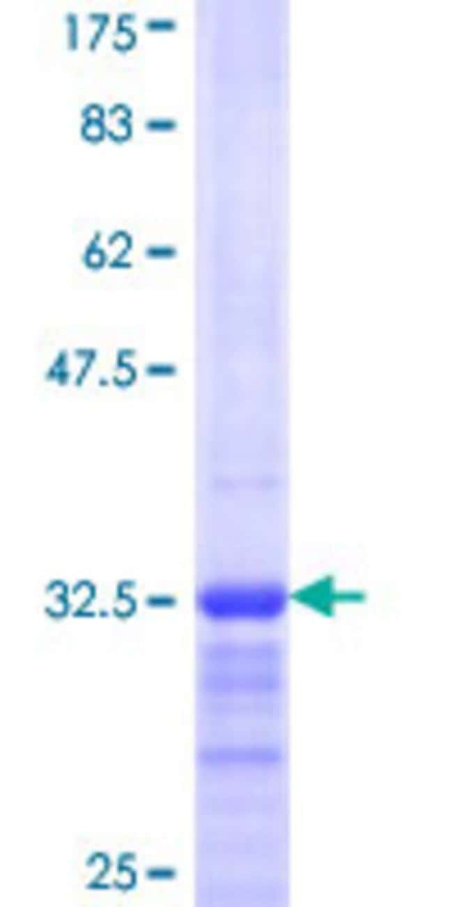 Abnova™Human RPS29 Partial ORF (NP_001023, 1 a.a. - 56 a.a.) Recombinant Protein with GST-tag at N-terminal 10μg Abnova™Human RPS29 Partial ORF (NP_001023, 1 a.a. - 56 a.a.) Recombinant Protein with GST-tag at N-terminal