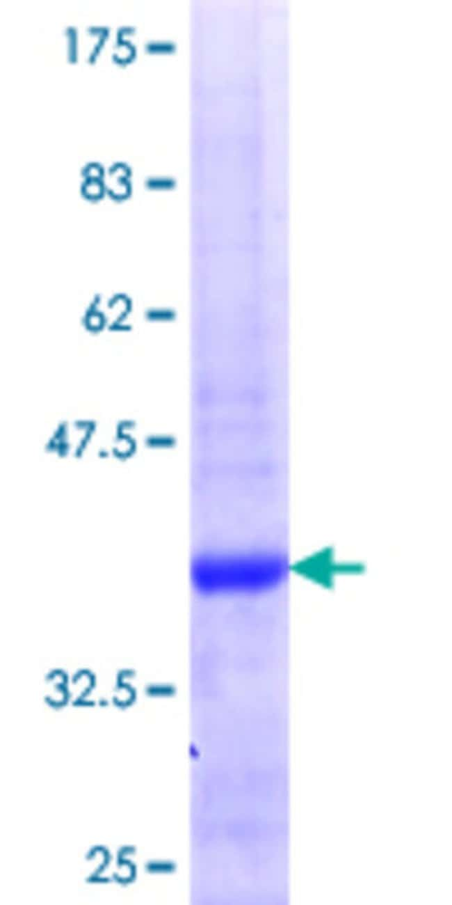Abnova™Human RSU1 Partial ORF (NP_036557.1, 178 a.a. - 277 a.a.) Recombinant Protein with GST-tag at N-terminal 25μg Abnova™Human RSU1 Partial ORF (NP_036557.1, 178 a.a. - 277 a.a.) Recombinant Protein with GST-tag at N-terminal