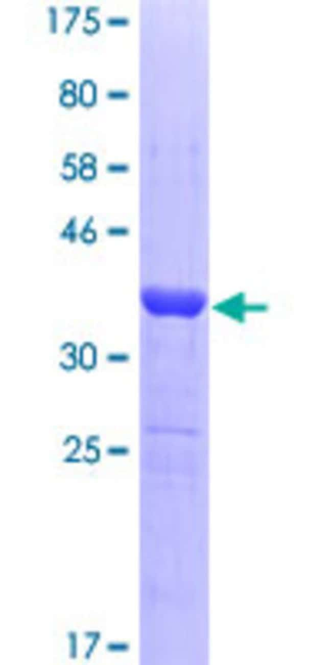 Abnova™Human PIAS3 Partial ORF (NP_006090, 453 a.a. - 550 a.a.) Recombinant Protein with GST-tag at N-terminal 10μg Abnova™Human PIAS3 Partial ORF (NP_006090, 453 a.a. - 550 a.a.) Recombinant Protein with GST-tag at N-terminal
