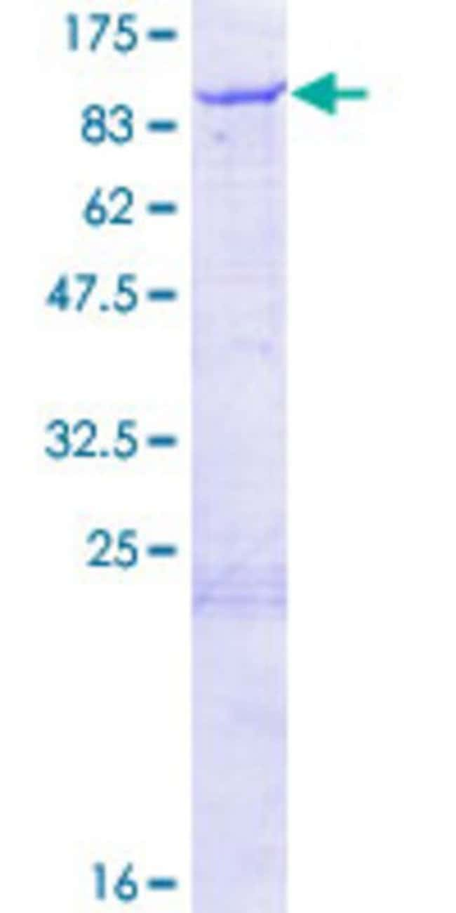 Abnova Human NDC80 Full-length ORF (NP_006092.1, 1 a.a. - 642 a.a.) Recombinant