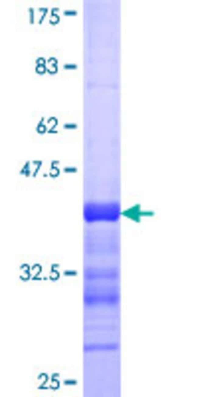 AbnovaHuman YAP1 Partial ORF (NP_006097, 53 a.a. - 161 a.a.) Recombinant