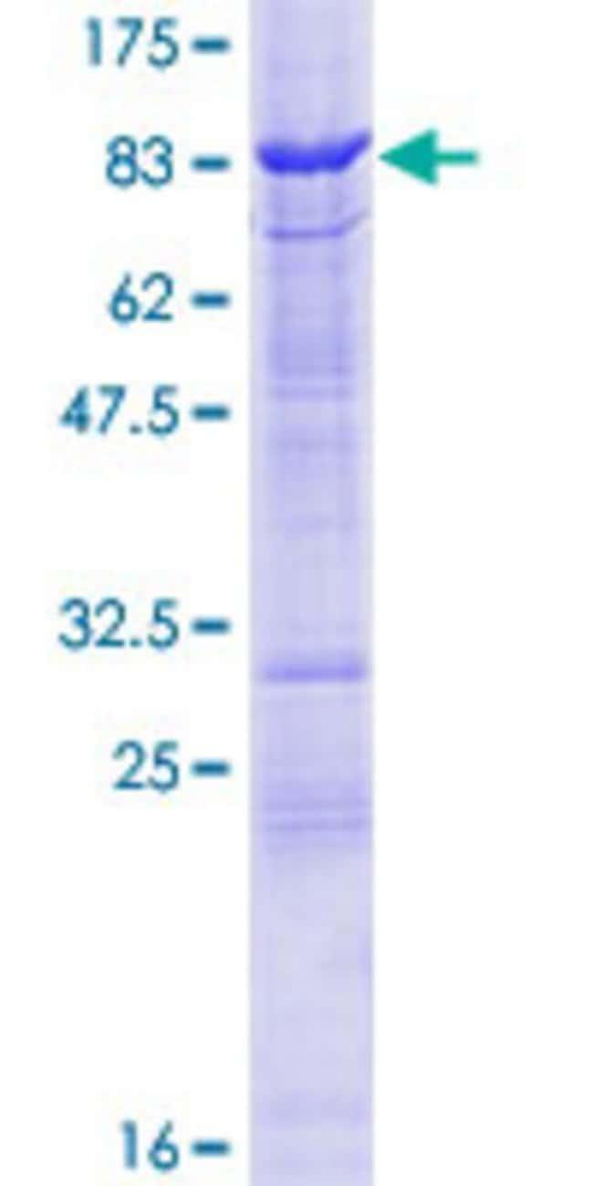 AbnovaHuman TESK2 Full-length ORF (AAH33085.1, 1 a.a. - 542 a.a.) Recombinant