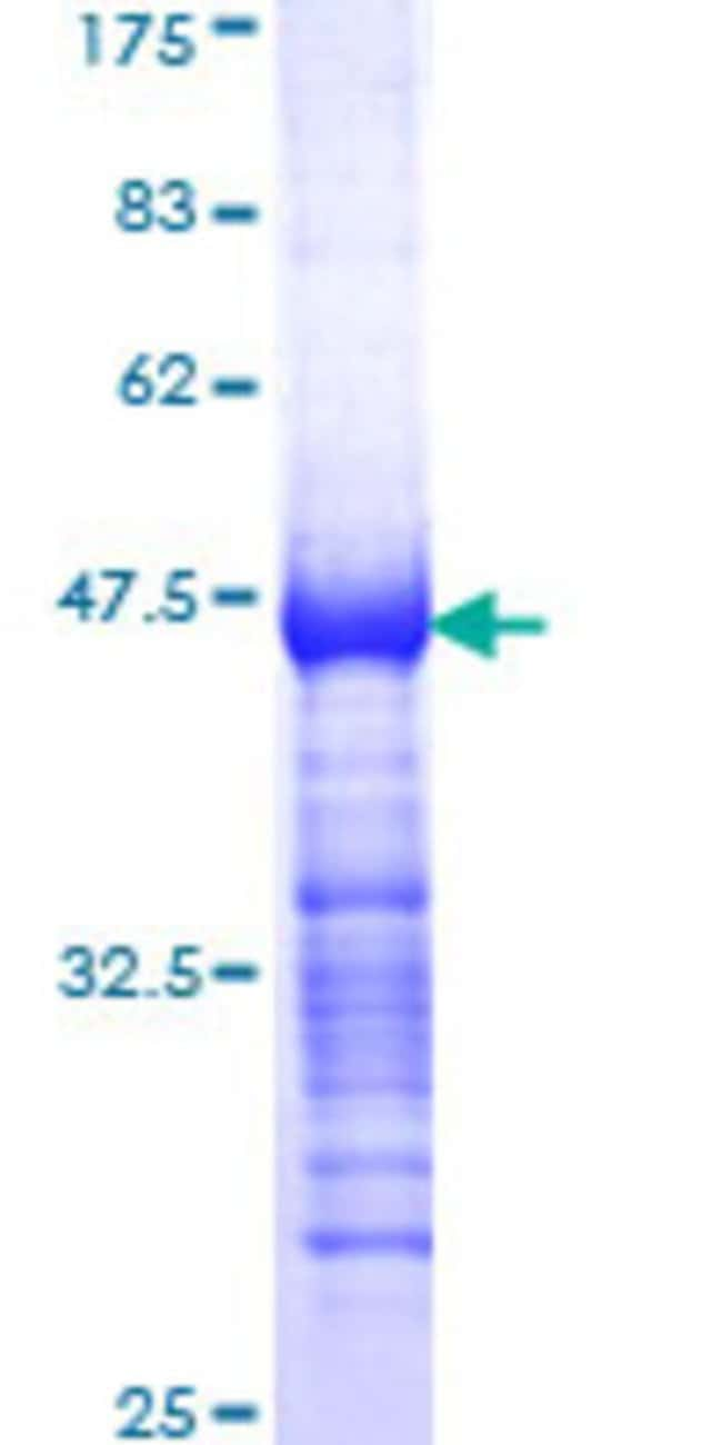 Abnova™Human TESK2 Partial ORF (AAH33085, 405 a.a. - 542 a.a.) Recombinant Protein with GST-tag at N-terminal 10μg Abnova™Human TESK2 Partial ORF (AAH33085, 405 a.a. - 542 a.a.) Recombinant Protein with GST-tag at N-terminal