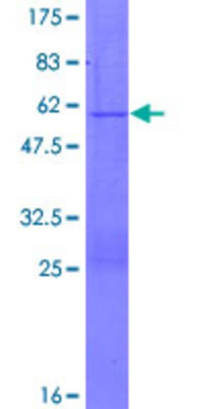 AbnovaHuman PGRMC2 Full-length ORF (NP_006311.1, 1 a.a. - 223 a.a.) Recombinant