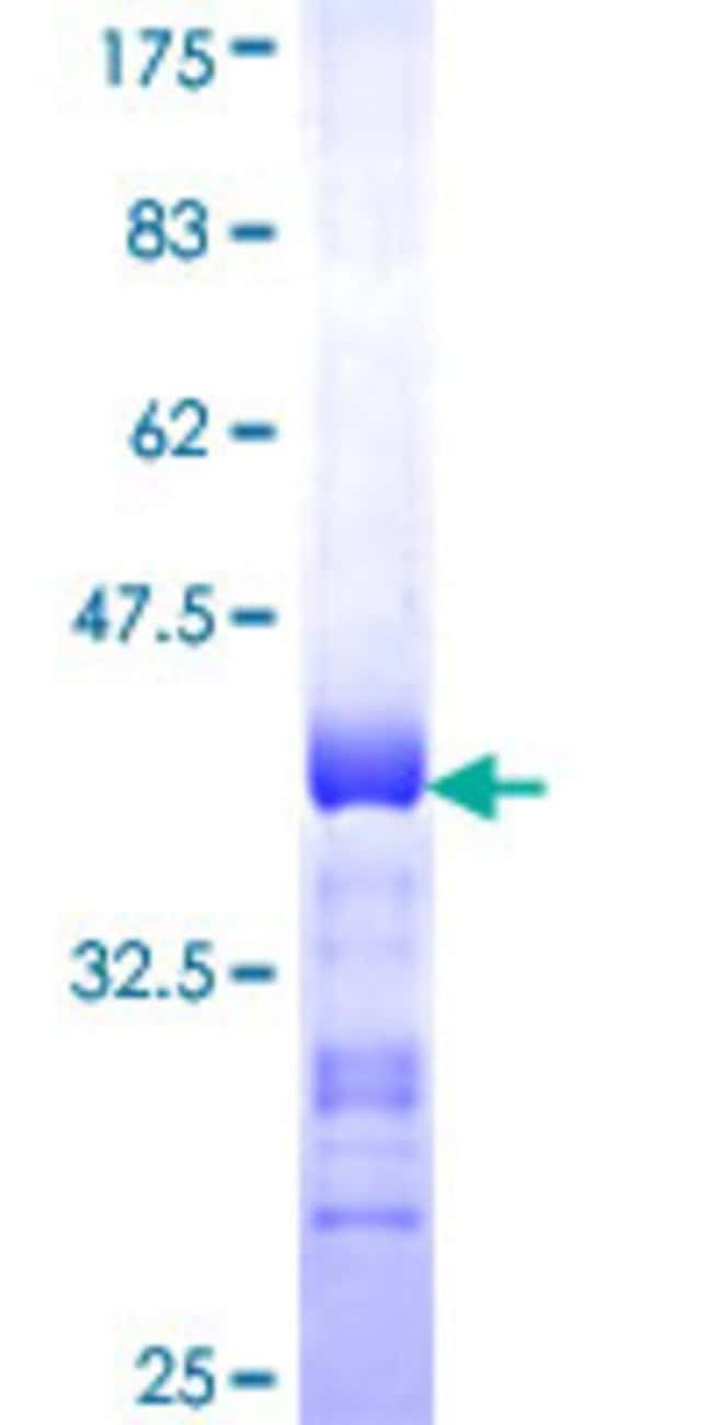 AbnovaHuman PGRMC2 Partial ORF (NP_006311, 124 a.a. - 223 a.a.) Recombinant