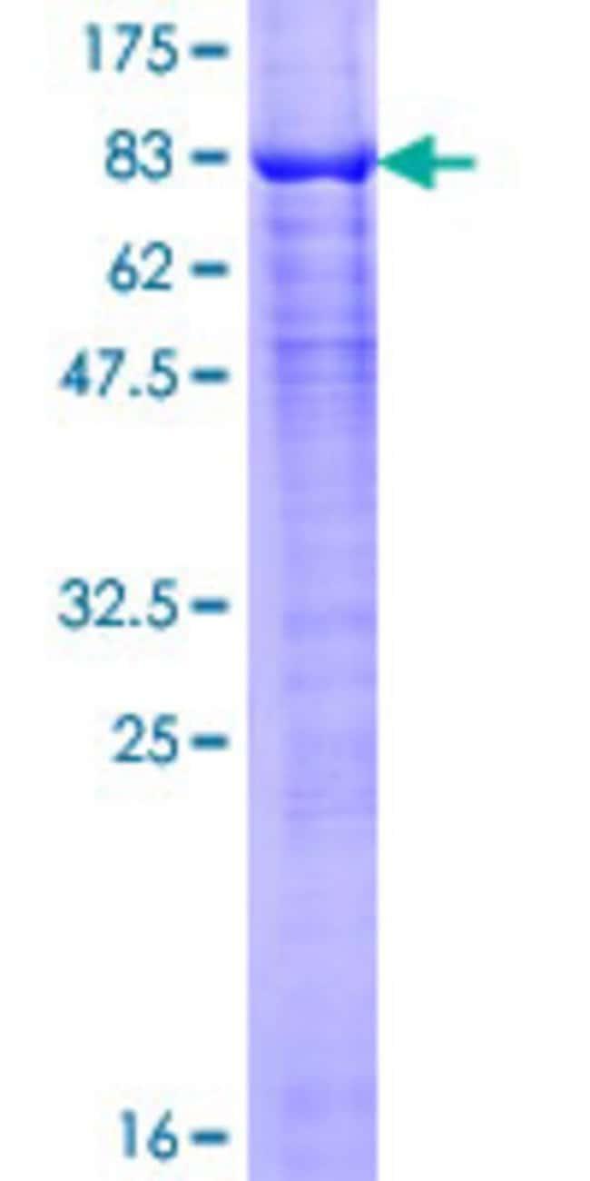 AbnovaHuman ARIH2 Full-length ORF (NP_006312.1, 1 a.a. - 493 a.a.) Recombinant