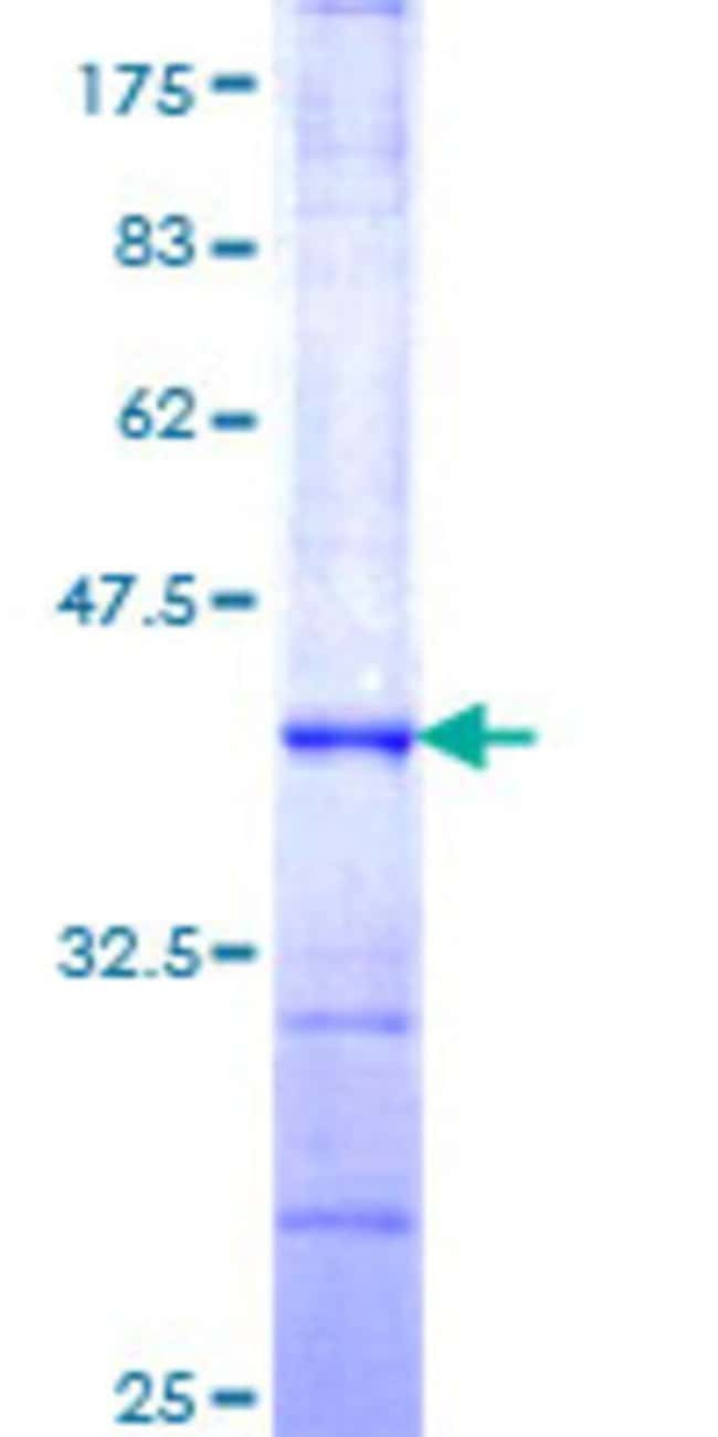 Abnova™ Human ARIH2 Partial ORF (NP_006312, 331 a.a. - 420 a.a.) Recombinant Protein with GST-tag at N-terminal 10μg Abnova™ Human ARIH2 Partial ORF (NP_006312, 331 a.a. - 420 a.a.) Recombinant Protein with GST-tag at N-terminal