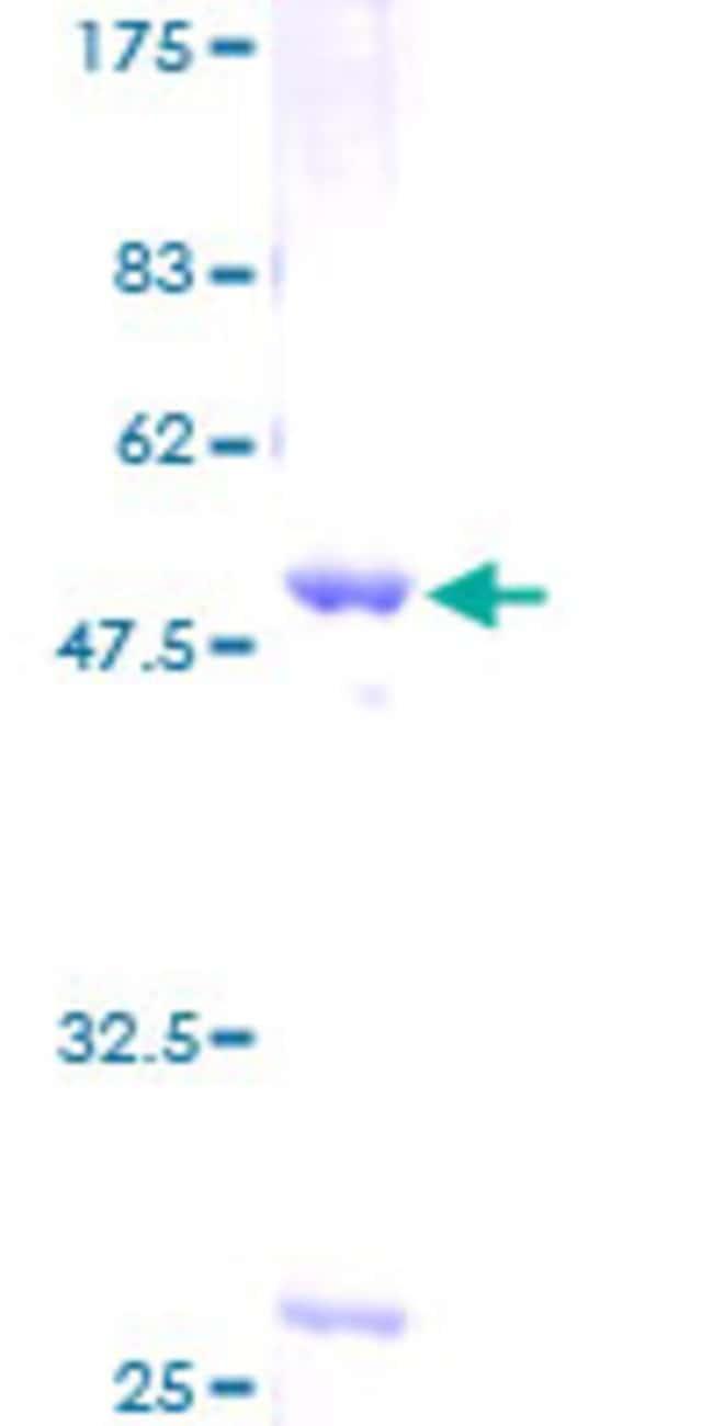 AbnovaHuman LYPLA1 Full-length ORF (AAH08652, 1 a.a. - 230 a.a.) Recombinant
