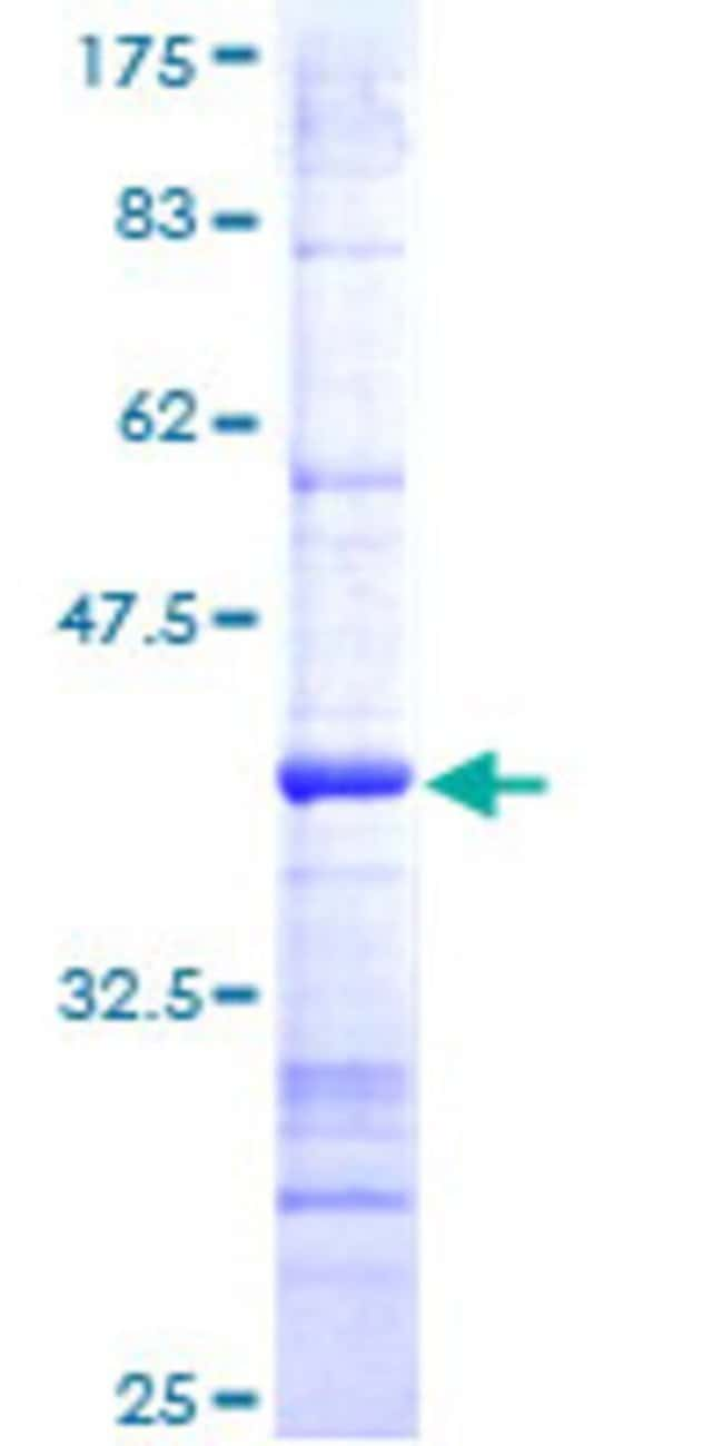 Abnova™Human LYPLA1 Partial ORF (NP_006321, 133 a.a. - 230 a.a.) Recombinant Protein with GST-tag at N-terminal 25μg Abnova™Human LYPLA1 Partial ORF (NP_006321, 133 a.a. - 230 a.a.) Recombinant Protein with GST-tag at N-terminal