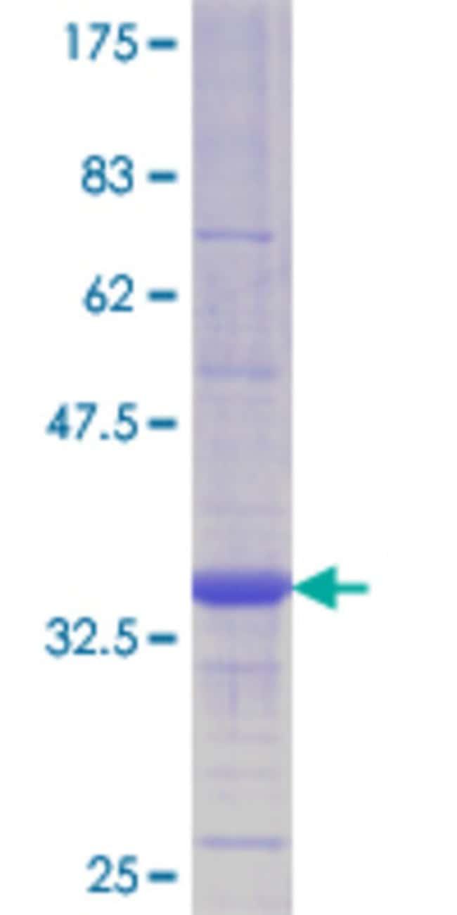 Abnova Human LYPLA1 Partial ORF (AAH08652.1, 66 a.a. - 151 a.a.) Recombinant
