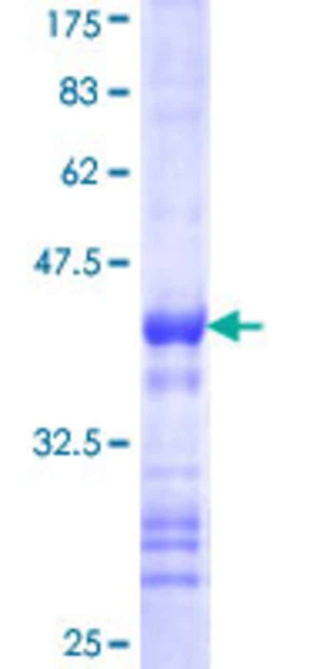 Abnova™Human CDC42EP2 Partial ORF (NP_006770, 102 a.a. - 210 a.a.) Recombinant Protein with GST-tag at N-terminal 25μg Abnova™Human CDC42EP2 Partial ORF (NP_006770, 102 a.a. - 210 a.a.) Recombinant Protein with GST-tag at N-terminal