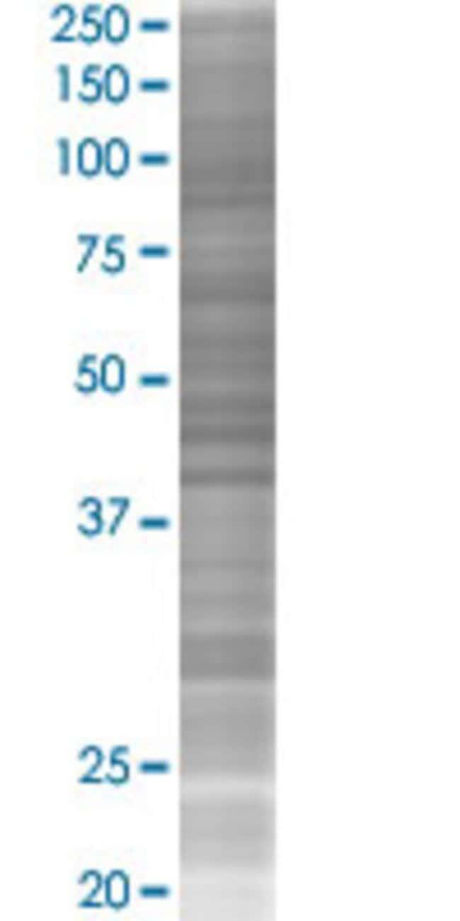 Abnova IFI30 293T Cell Transient Overexpression Lysate (Denatured) (T02)