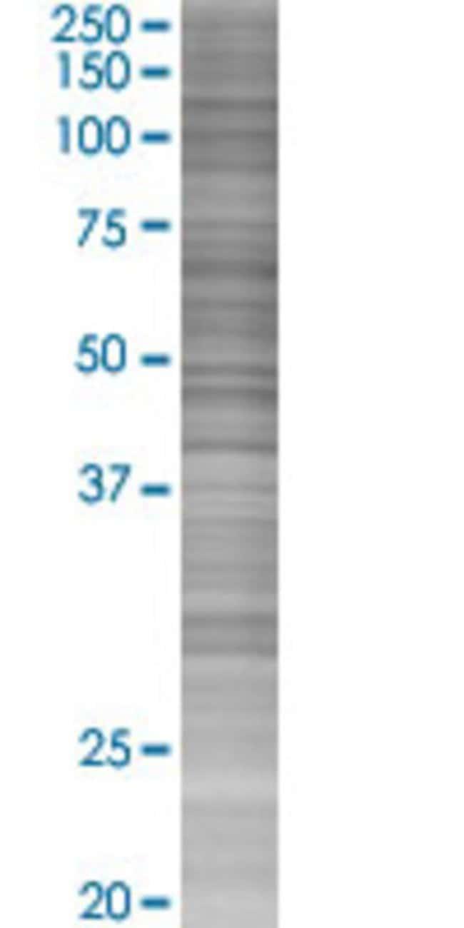 Abnova IFI30 293T Cell Transient Overexpression Lysate (Denatured) (T03)