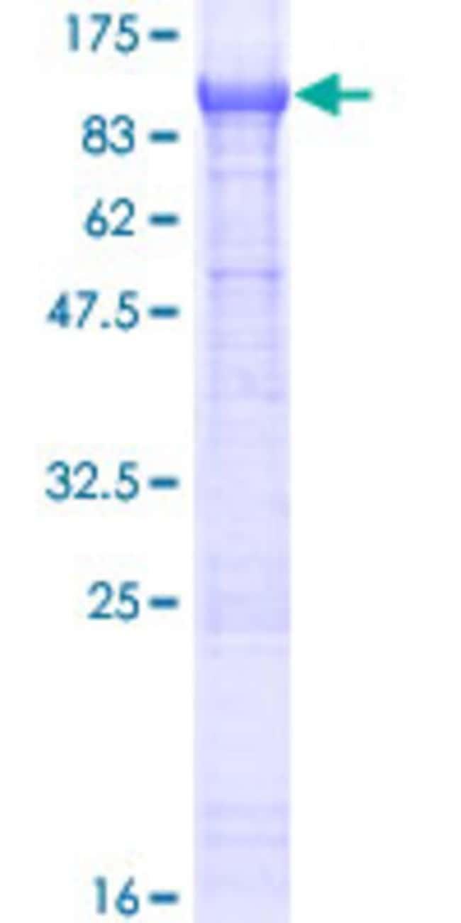 AbnovaHuman ZER1 Full-length ORF (NP_006327.2, 1 a.a. - 766 a.a.) Recombinant
