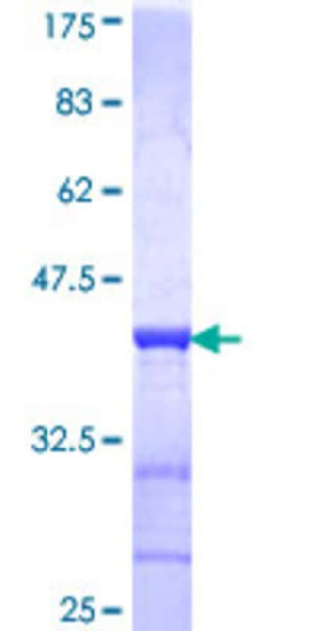 AbnovaHuman ACAA2 Partial ORF (NP_006102, 151 a.a. - 260 a.a.) Recombinant