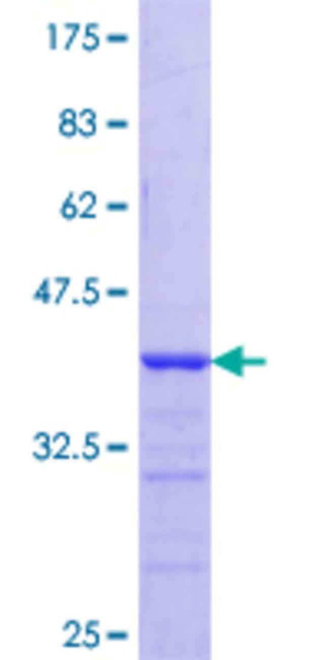 AbnovaHuman HAX1 Partial ORF (NP_006109.2, 76 a.a. - 174 a.a.) Recombinant