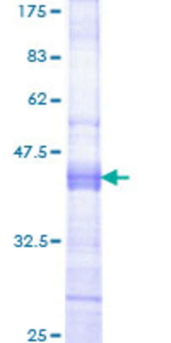 AbnovaHuman GPNMB Partial ORF (NP_001005340, 104 a.a. - 203 a.a.) Recombinant