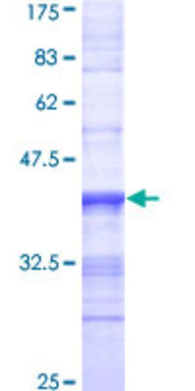 AbnovaHuman MERTK Partial ORF (NP_006334, 21 a.a. - 120 a.a.) Recombinant