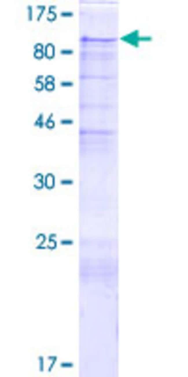 AbnovaHuman PIBF1 Full-length ORF (NP_006337.2, 1 a.a. - 757 a.a.) Recombinant