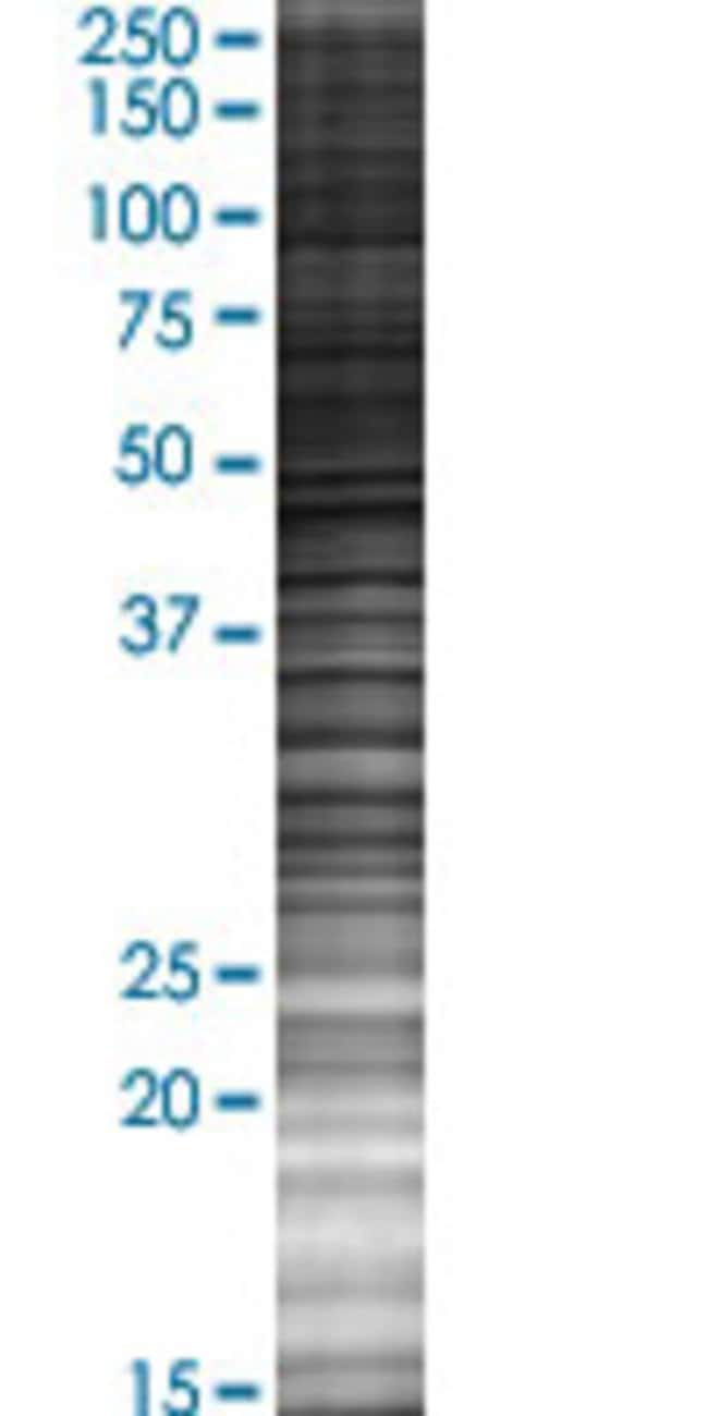 Abnova ZNF238 293T Cell Transient Overexpression Lysate (Denatured) (T02)