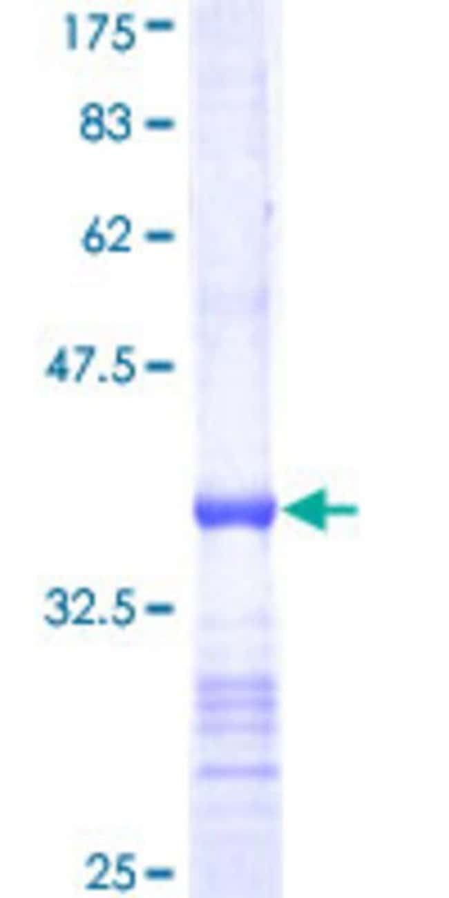 Abnova™Human UBE2E3 Partial ORF (NP_006348, 65 a.a. - 152 a.a.) Recombinant Protein with GST-tag at N-terminal 10μg Abnova™Human UBE2E3 Partial ORF (NP_006348, 65 a.a. - 152 a.a.) Recombinant Protein with GST-tag at N-terminal