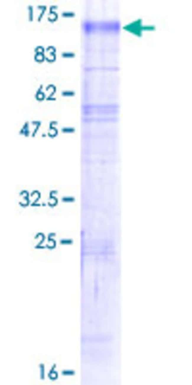 Abnova™Human SLC9A6 Full-length ORF (NP_001036002.1, 1 a.a. - 701 a.a.) Recombinant Protein with GST-tag at N-terminal 25μg Abnova™Human SLC9A6 Full-length ORF (NP_001036002.1, 1 a.a. - 701 a.a.) Recombinant Protein with GST-tag at N-terminal