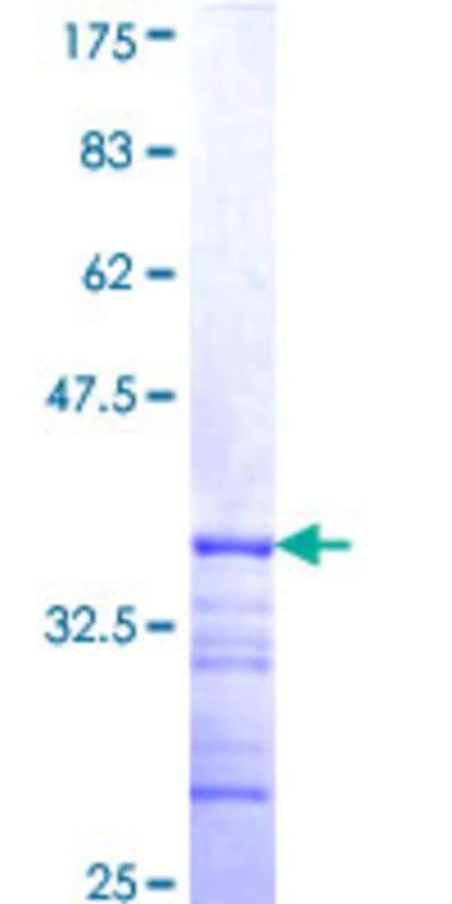AbnovaHuman SLC9A6 Partial ORF (NP_006350, 602 a.a. - 669 a.a.) Recombinant