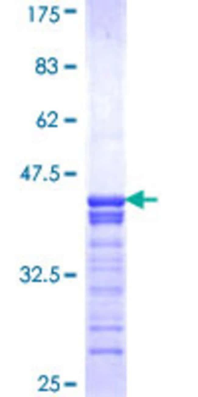 AbnovaHuman CREB3 Partial ORF (NP_006359, 273 a.a. - 371 a.a.) Recombinant