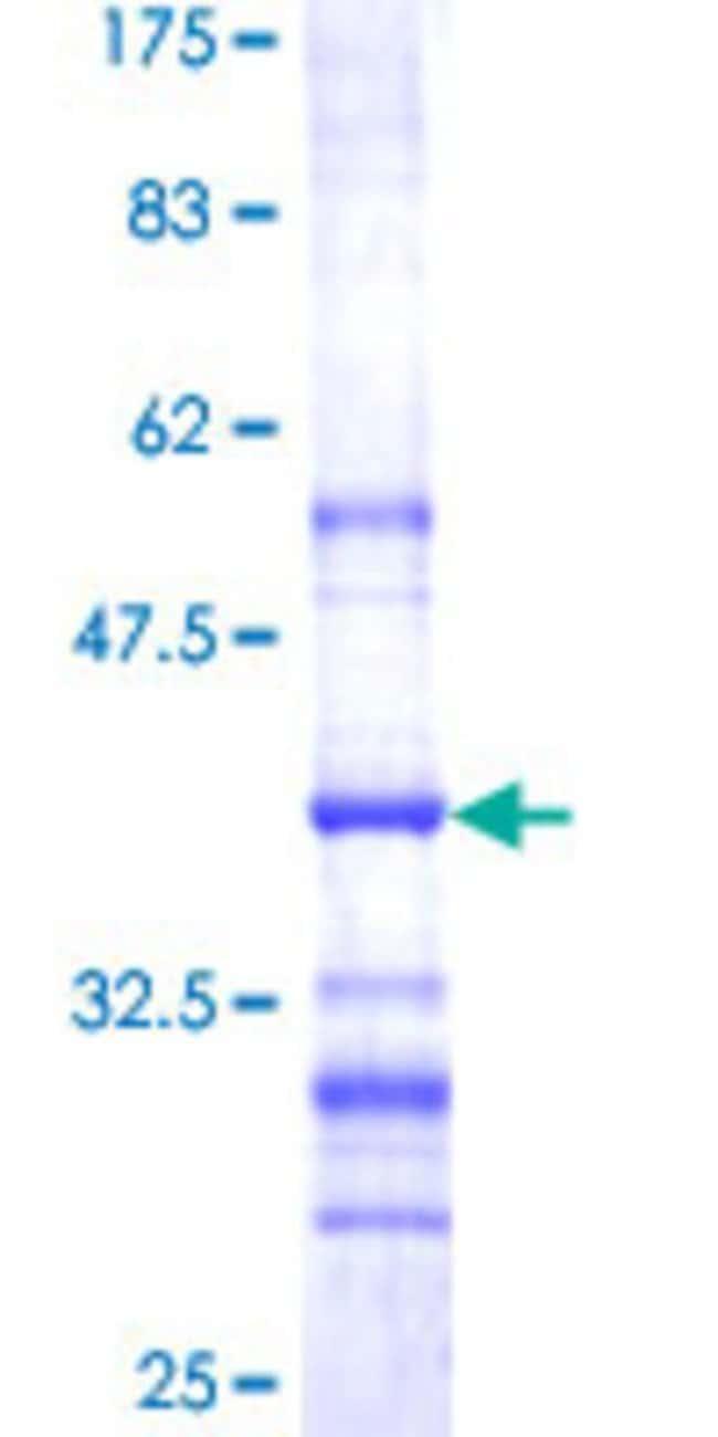 AbnovaHuman CRTAP Partial ORF (NP_006362, 307 a.a. - 401 a.a.) Recombinant