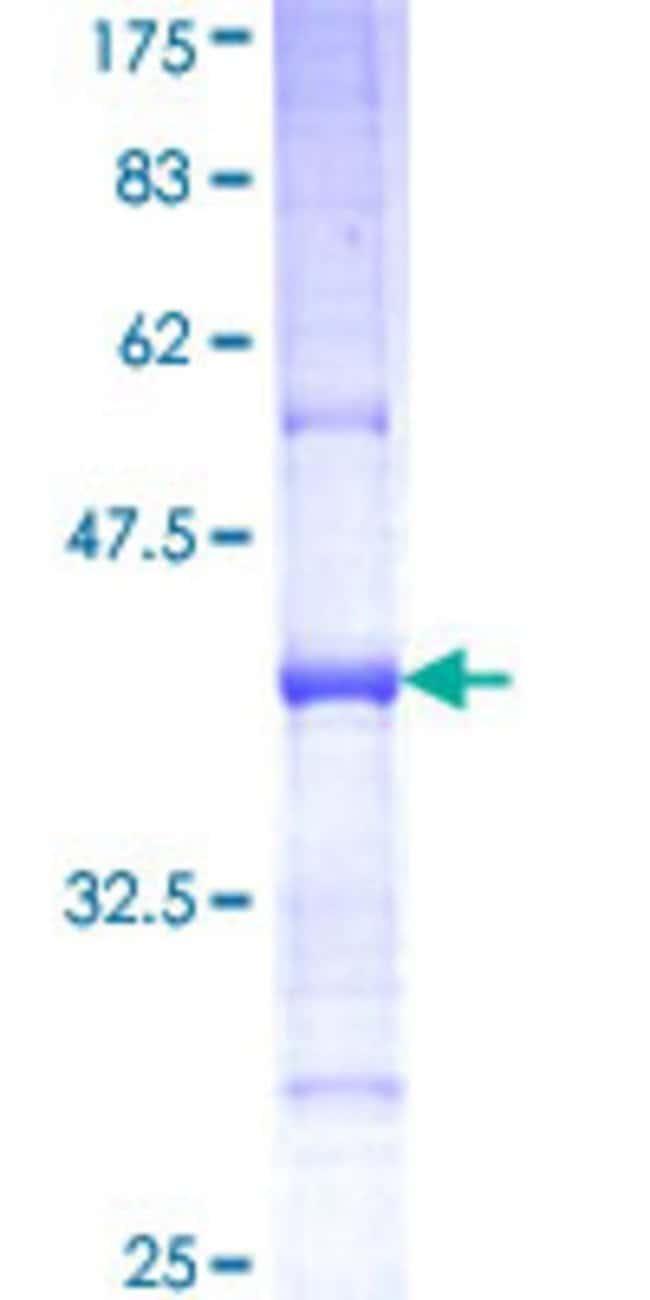 Abnova™Human SEMA6C Partial ORF (NP_112175, 28 a.a. - 126 a.a.) Recombinant Protein with GST-tag at N-terminal 10μg Abnova™Human SEMA6C Partial ORF (NP_112175, 28 a.a. - 126 a.a.) Recombinant Protein with GST-tag at N-terminal