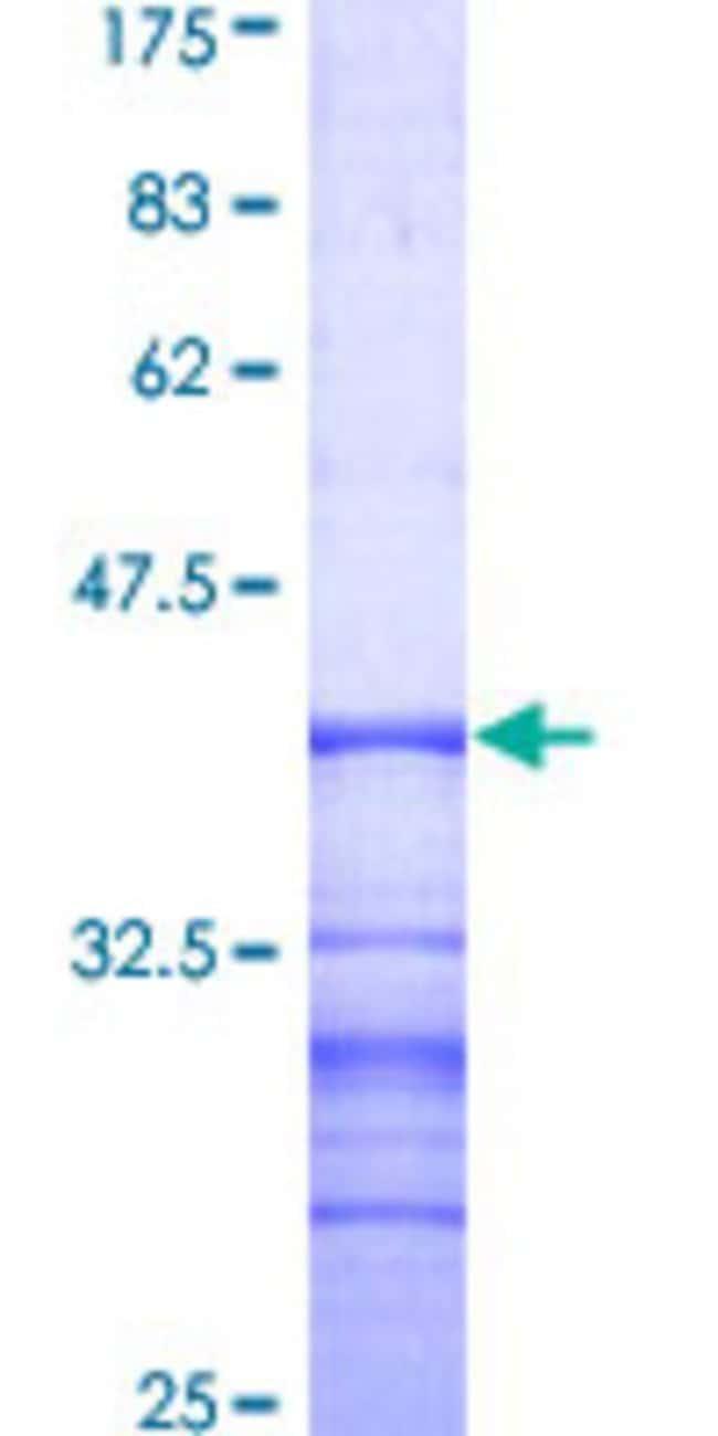 AbnovaHuman SEMA4D Partial ORF (AAH54500, 115 a.a. - 224 a.a.) Recombinant