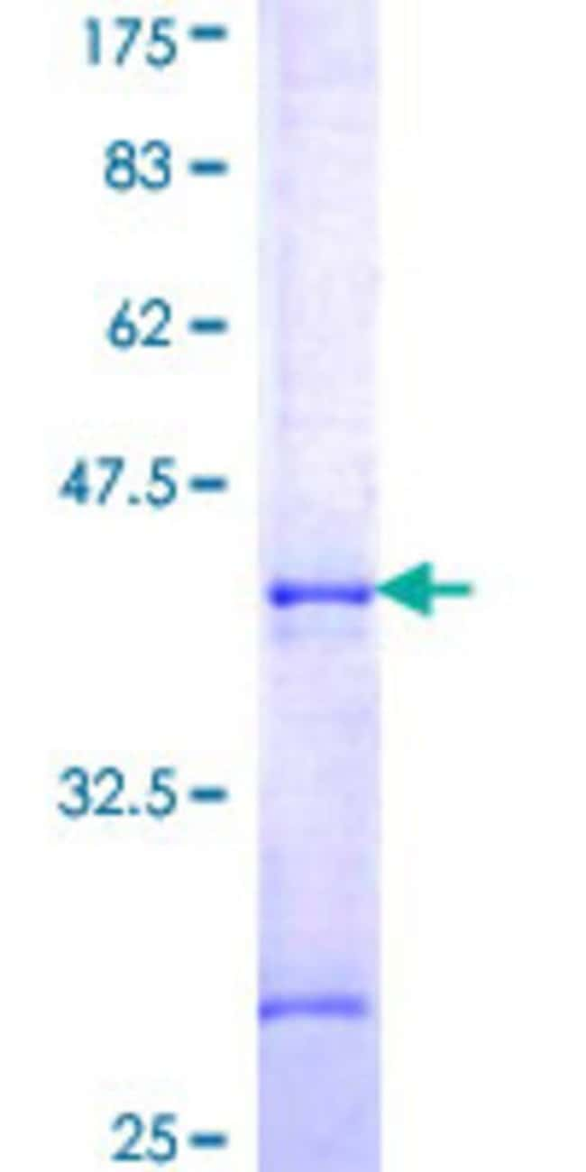 Abnova™Human APPBP2 Partial ORF (NP_006371, 486 a.a. - 585 a.a.) Recombinant Protein with GST-tag at N-terminal 25μg Abnova™Human APPBP2 Partial ORF (NP_006371, 486 a.a. - 585 a.a.) Recombinant Protein with GST-tag at N-terminal