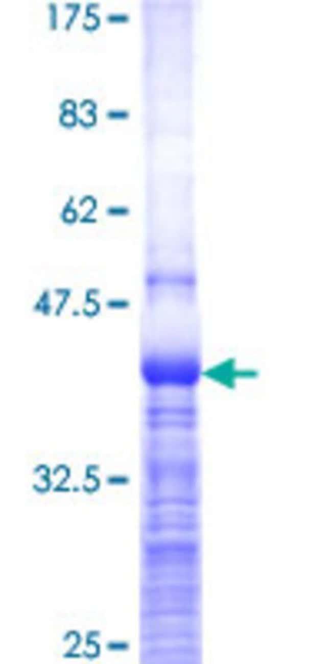 AbnovaHuman MYBBP1A Partial ORF (NP_055335, 1231 a.a. - 1326 a.a.) Recombinant