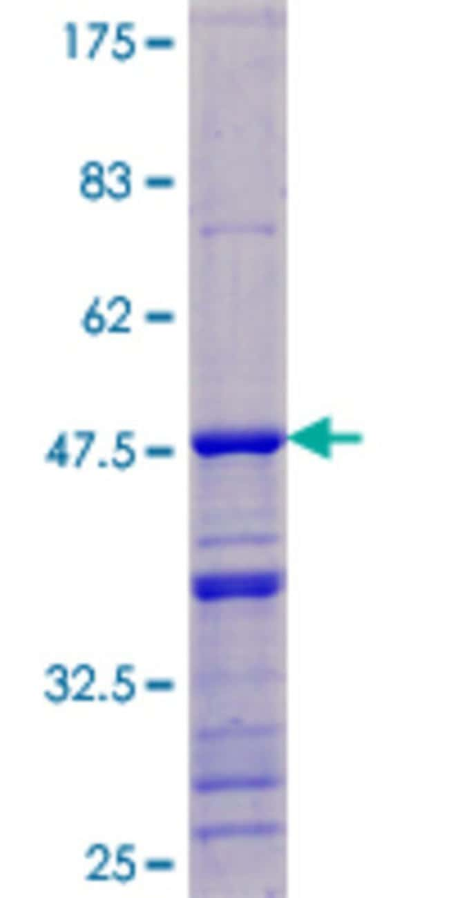 AbnovaHuman DDX17 Full-length ORF (NP_112020.1, 1 a.a. - 183 a.a.) Recombinant