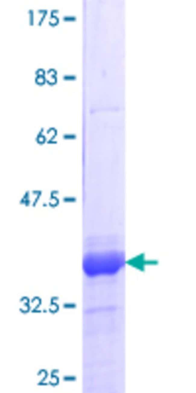 AbnovaHuman DEAF1 Partial ORF (NP_066288.2, 133 a.a. - 222 a.a.) Recombinant