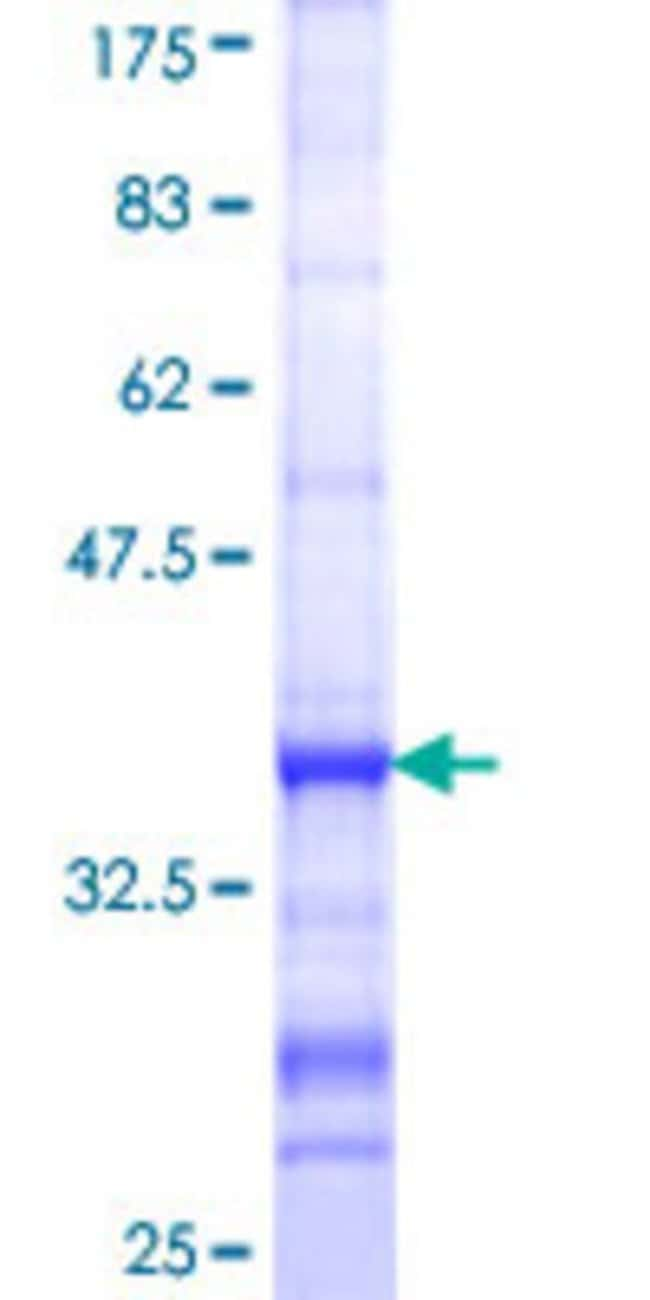 AbnovaHuman APG7L Partial ORF (NP_006386, 1 a.a. - 100 a.a.) Recombinant